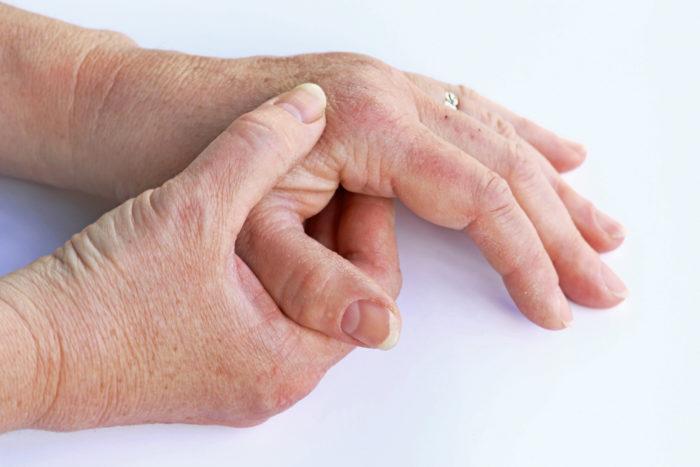 enfermedad de artrosis en manos